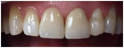 12-21 Layered Zirconia Crowns