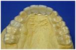 Biocryl Temporary Removable Partial Dentures 1