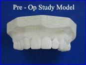 Pre-Op Study Model