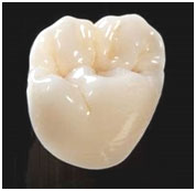 fixed-zirconia