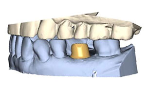 Custom Abutments and Substructure 1