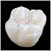 0.5mm minimum thickness Zirconia Crowns