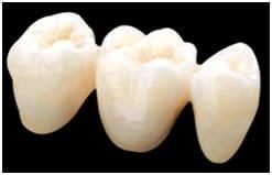 Full contour zirconia