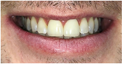 After porcelain layered crowns
