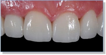 The Final Case Close Up – e.Max Anteriors with Right Lateral Implant and Zirconia Abutment