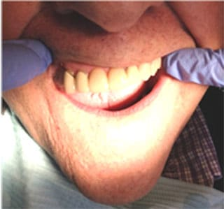 O-So O-Ring Over Denture Attachment- After