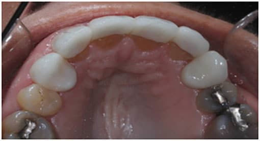 The Final Case Close Up – e.Max ¾ Layered Anterior Crowns for All 4 Incisors