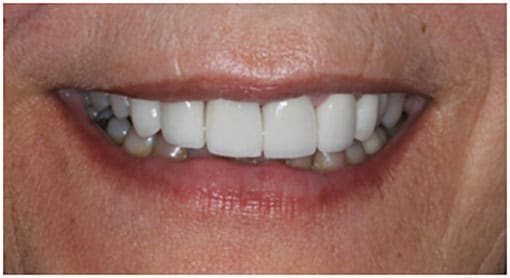 The Final Case Close Up – e.Max Layered Crowns to Alter the 1st Bicuspids to look Like Cuspids