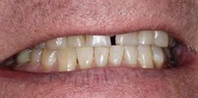Post Ortho Smile