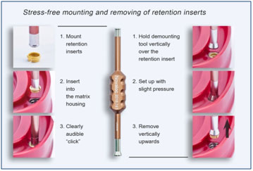 Mounting & Removing Of Retention Inserts